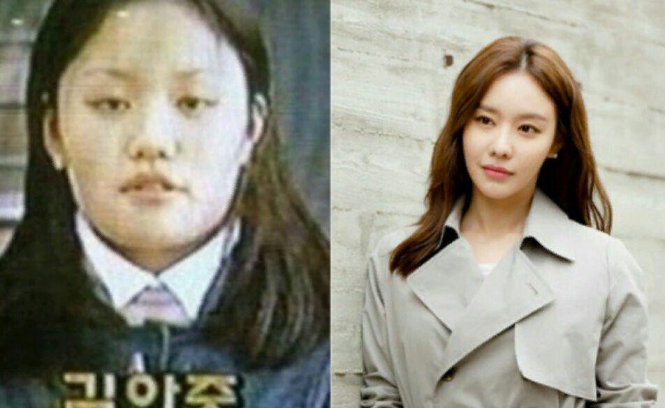 عکس قبل و بعد از عمل بازیگر کره ای کیم اه جونگ بازیگر سریالهای(امپراطور دریا/مُشت/قلب قوی/تحت تعقیب)�