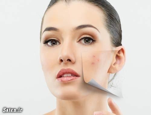 درمان جوش صورت و آکنه