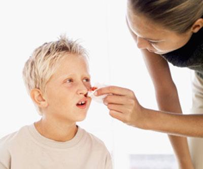 چگونه خونریزی بینی را متوقف کنیم