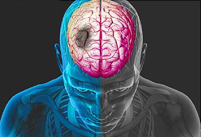 اگر این نشانه ها را دارید، سکته مغزی در راه است!