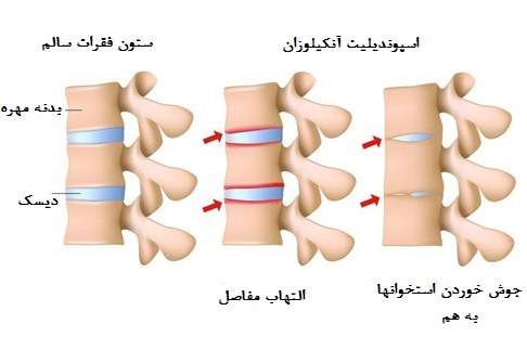 بیمار به دلیل التهاب و سفتی ستون فقرات ممکن است حالت «خم شدن به جلو» داشته باشد. التهاب به ویژه ناحیه خاجی-تهیگاهی Sacroiliac مفاصل لگن، ستو