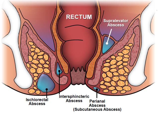بیماری آبسه آنوركتال Anorectal abscess
