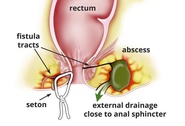 آبسهٔ مقعد یا آبسه آنورکتال(به انگلیسی: Anorectal abscess)