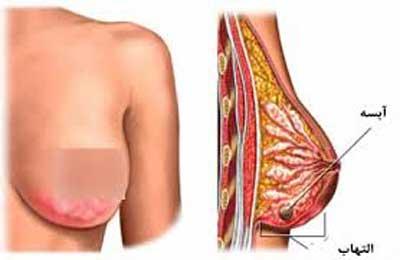 آبسه پستان breast abscess