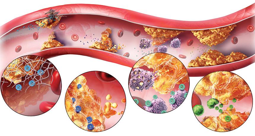 آترواسکلروز (تصلب شرایین) – عوامل ، عوارض ، علل ، پیشگیری و..