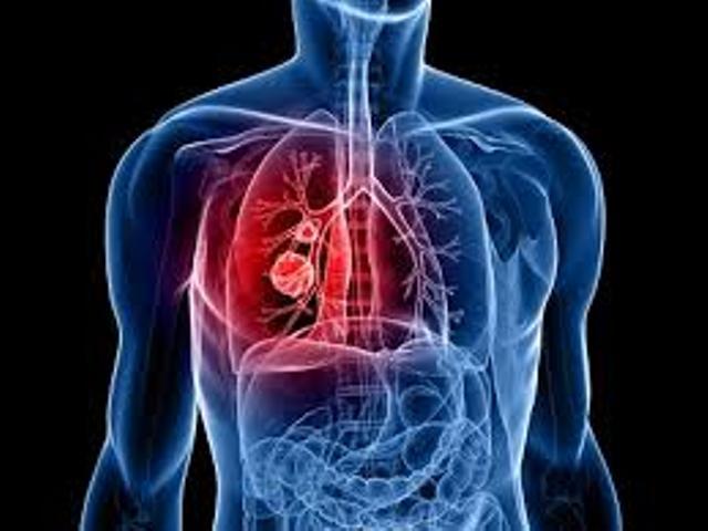 اشنایی با بیماری آتلکتازی: Atelectasis