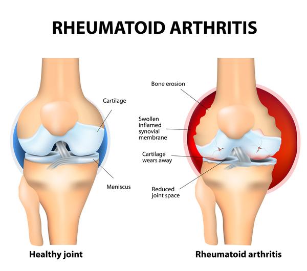 بیماری آرتریت روماتویید جوانان یا کودکان :Juvenile idiopathic arthritis