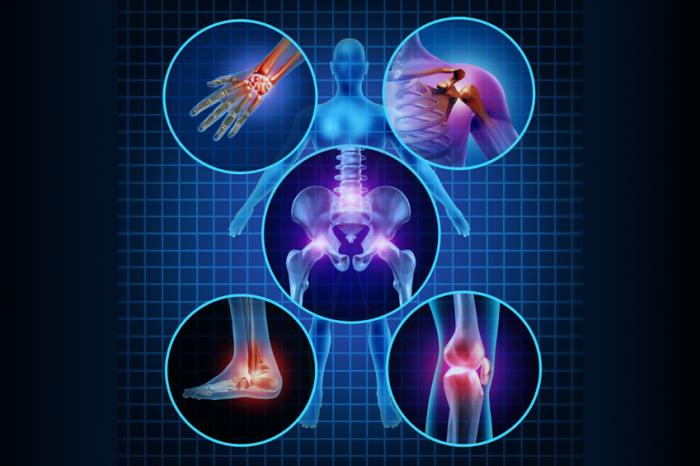 بیماری آرتریت عفونی:Arthritis و راه علاج ان