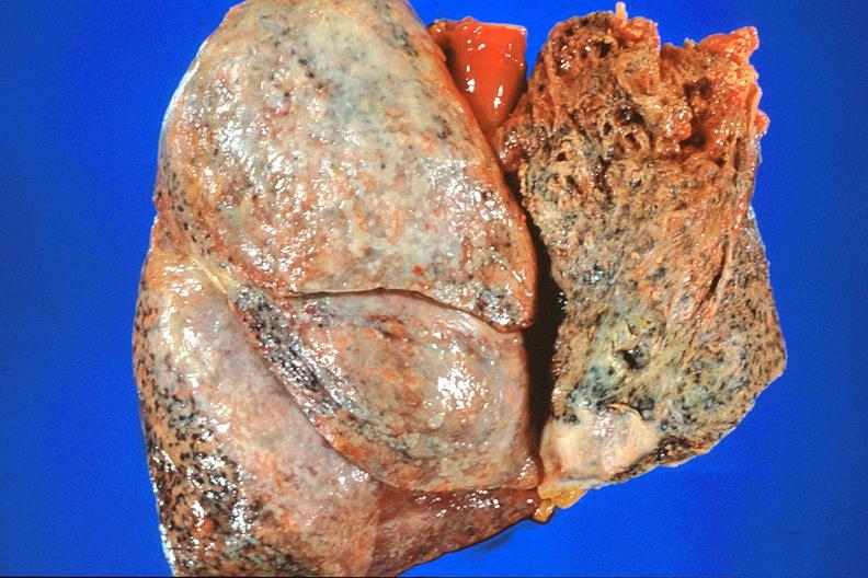 آشنایی با آزبستوز : Asbestosis(علل ، علائم ، پیشگیری ، درمان )