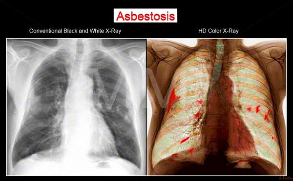 آزبستوز (به انگلیسی: Asbestosis)