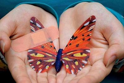 بیماری ای بی (EB) (کودکان پروانهای) چیست؟