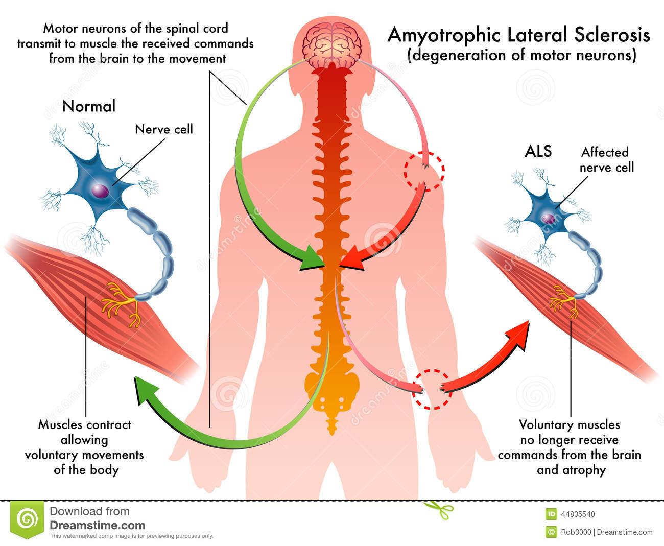 آميوتروفيك لاترال اسكلروز: Amyotrophic lateral sclerosis (ALS شرح بیماری,پیشگیری و ...