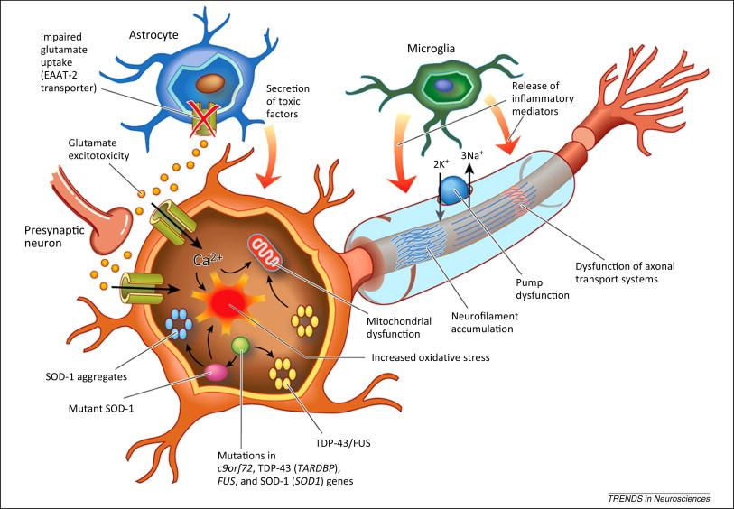 شایعترین بیماری نورونهای حرکتی (MND) میباشد