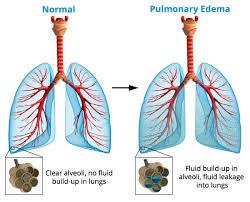 اِدِمِ ریه (به انگلیسی: Pulmonary edema) به معنی تجمع آب میان بافتی در ریه میباشد