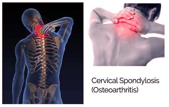 هرنوع بیماری تخریبی مهرههای ستون فقرات را مُهراک[۱] یا اسپوندیلوز (به انگلیسی: Spondylosis) میگویند. مهراک از آسیبهای غیر التهابی در ستون مهرههای بدن است.