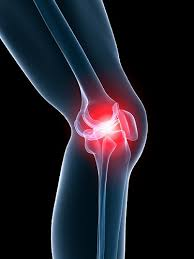استئوآرتریت : Osteoarthritis چیست ؟