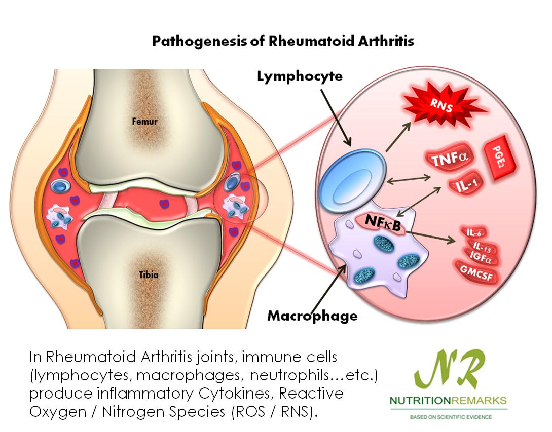 استئوآرتریت (به انگلیسی: Osteoarthritis) بیماری بسیار شایعی است که در تمام مناطق جغرافیایی دیده میشود