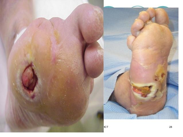 استئومیلیت : Osteomyelitis علایم : علل  عوامل تشدید کننده بیماری  پیشگیری ...