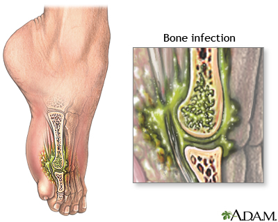ورم استخوان (نامهای دیگر: کورک استخوان، التهاب مغز استخوان، استئومیلیت (به انگلیسی: Osteomyelitis)) به معنی عفونت استخوان و مغز استخوان میباشد. تمام استخوانهای بدن ممکن است دچار عفونت شوند.