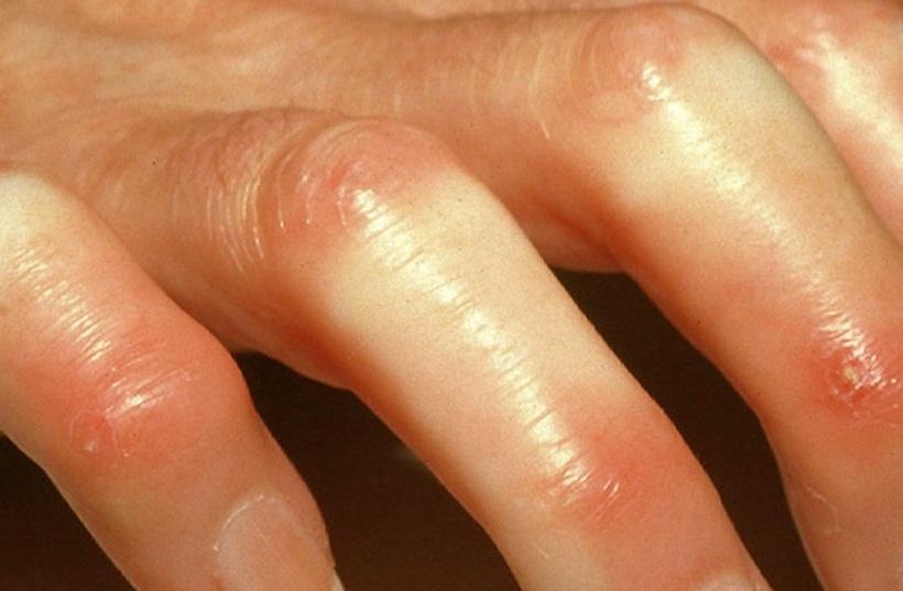 اسكلرودرمي : scleroderma پيشگيري : عوارض احتمالي :درمان...