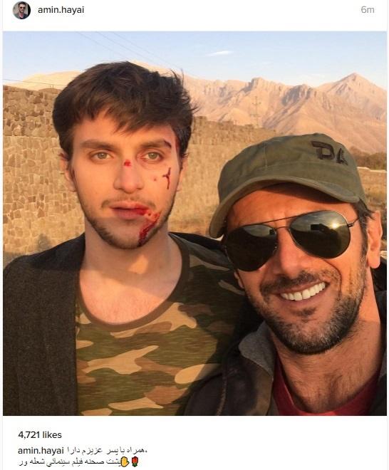 صورت خونآلود پسر امین حیایی +عکس