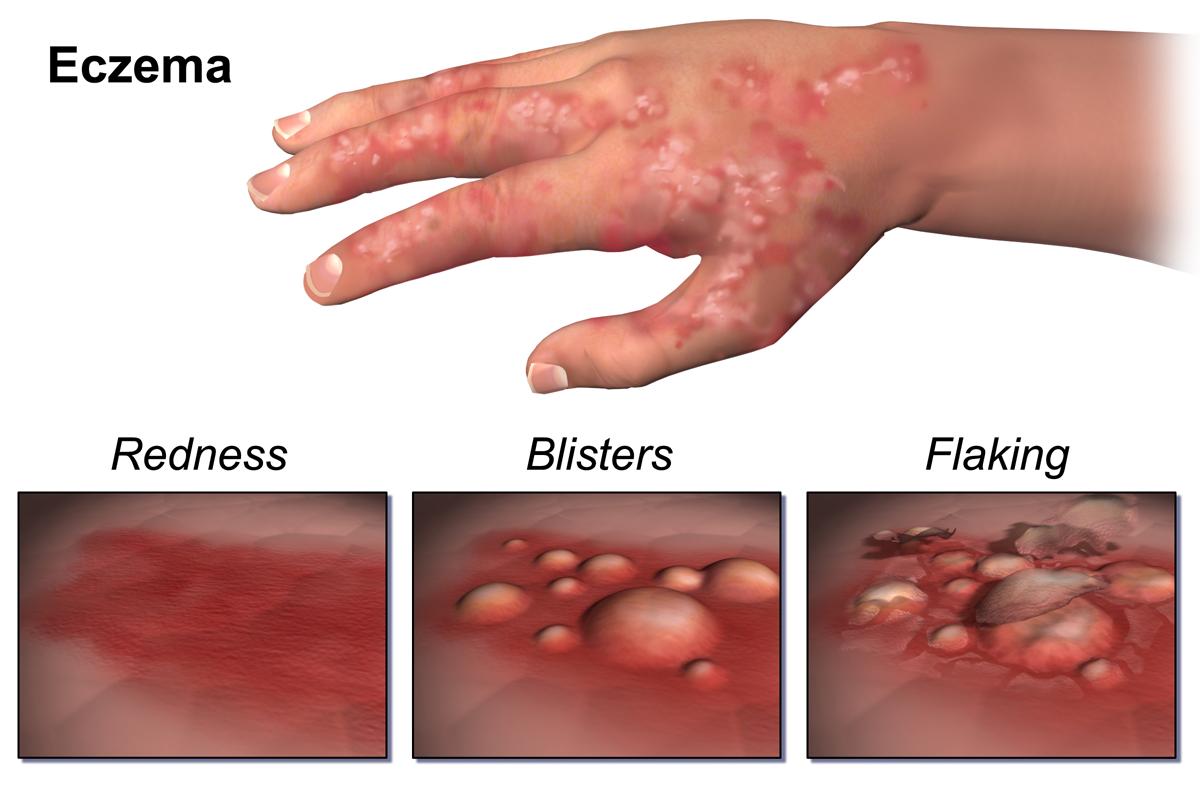 اگزما : Eczema  شرح بيماري   علايم شايع   علل : پيشگيري...