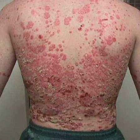 اِگْزِما (به انگلیسی: eczema) یا درماتیت به التهاب یا آماس پوست گفته میشود که میتواند منجر به خارش، قرمزی، تورم، پوستهریزی و دیگر نشانهها شود.