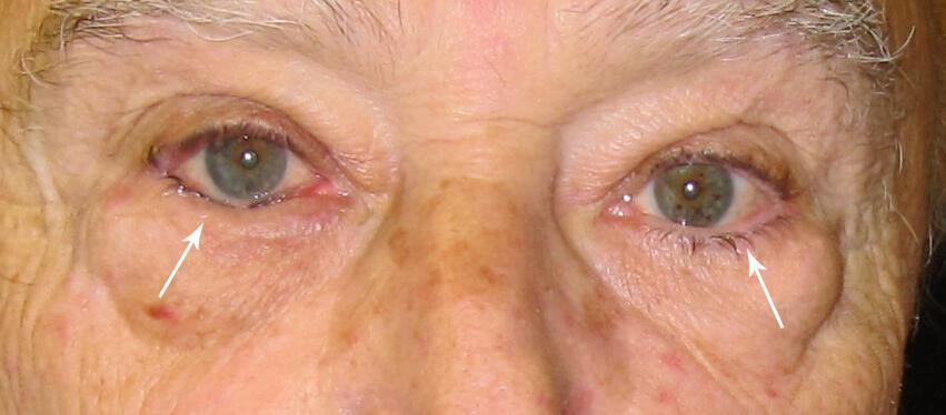چسبندگی پلکها، تولید چرک، چسبندگی مژهها . التهاب چشم ( تورم، قرمزی، درد و اشکریزش ) که در اثر ساییده شدن پلکِ به داخل چرخیده و مژهها با قرنیه ایجاد میشود. بیماری ممکن است به زخم شدن قرنیه و کوری دایمی منجر شود.
