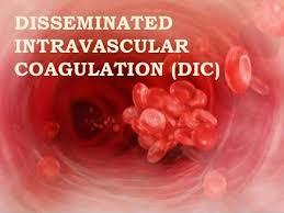 خالي شدن خون از مواد مؤثر در انعقاد و تثبيت لخته، كه موجب بروز خونريزيهاي گسترده ميشود.