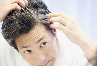 سفید شدن ناگهانی مو, سفید شدن زودهنگام موها