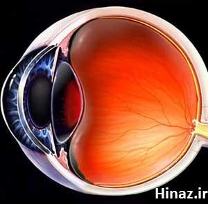 درمان بیماری چشم استاد تبریزیان