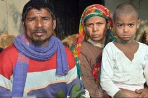 سنگ شدن ,سنگ شدن بدن پسر بچه ای در بنگلادش,به سنگ تبدیل میشود,بیماری نادر سنگ شدن,تبدیل به سنگ شد,تبدیل شدن به سنگ