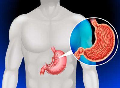 9 عادتی که باعث افزایش خطر سرطان معده می شود