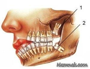 دندان عقل دردسرسازترین دندان در جهان