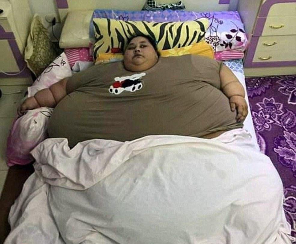زن مصری ۵۰۰ کیلویی جراحی شد +تصاویر