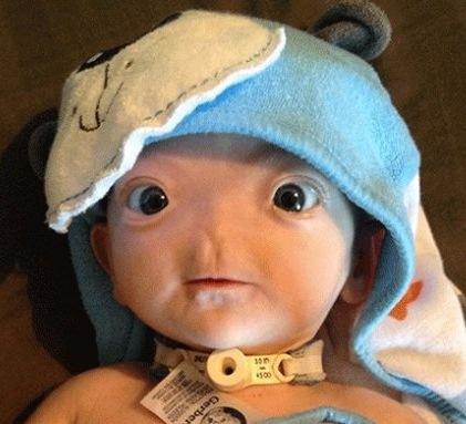 پسری که بدون بینی متولد شد
