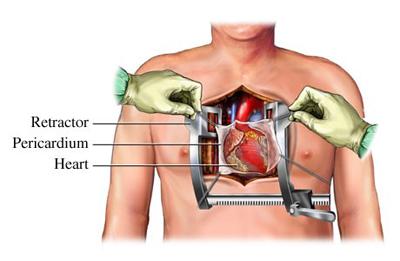 دکتر جواد سلیمی - فوق تخصص جراحی قلب و عروق , متخصص قلب و عروق