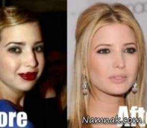 عکس ایوانکا ترامپ قبل و بعد از جراحی زیبایی