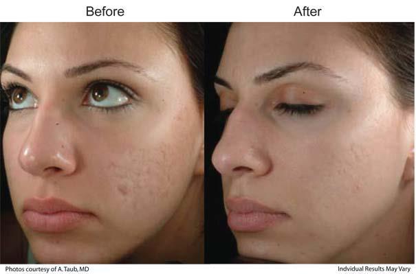 پوست زیبا درخشان و با طراوت برای پاکسازی پوست