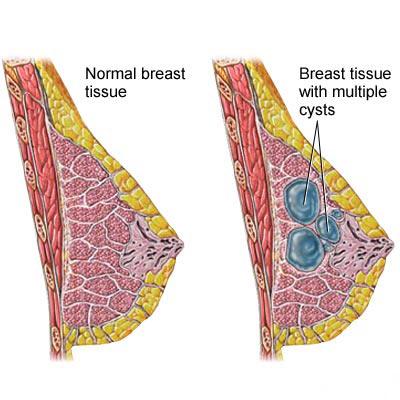 درمان تومور و کیست سینه