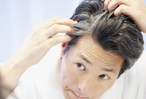 رفع سفیدی مو , بهترین درمان برای سفیدی مو