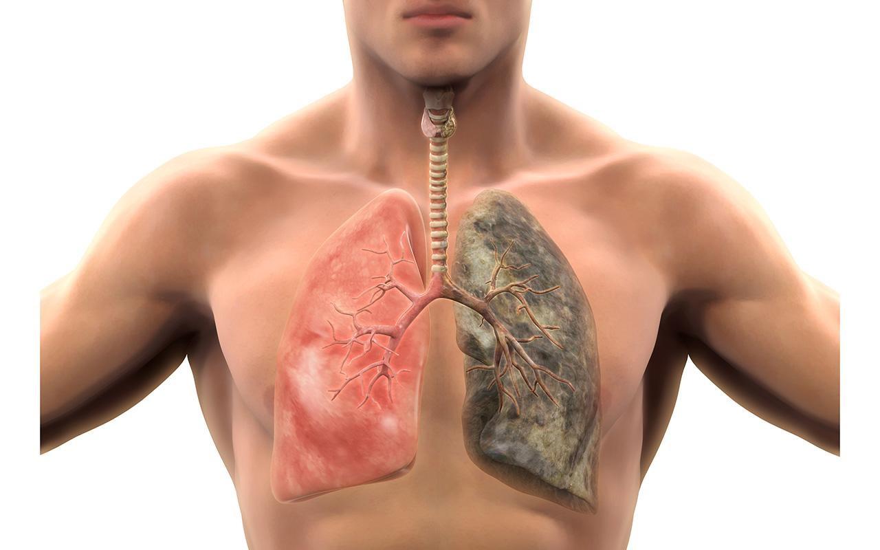 اگر این نشانهها را دارید، ریههایتان بیمار است!