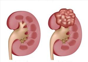 علائم تومور کلیوی در کودکان - درمان تومور کلیوی کودکان