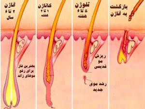 لیزر مو های زائد بدن دائمی یا موقت