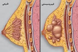 کیست سینه چیست و چه علائمی دارد؟