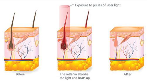 اپیلاسیون و از بین بردن موهای زائد چگونه انجام میگیرد ؟