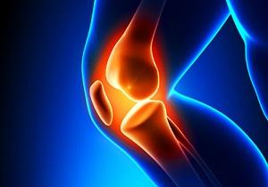 وزن بالا، مهمترین عامل تخریب مفاصل/ شکستن قلنج آسیبی به مفاصل نمیزند