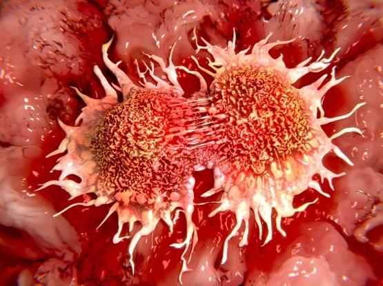 پیاده روی؛ کلید درمان مرگبارترین بیماری جهان + تصاویر