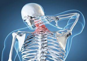 عوامل بروز آرتروز گردن چیست؟
