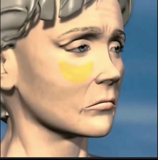جوانسازی پوست و ازبین بردن چین وچروک صورت